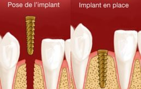 POSE D'IMPLANTS - DENTISTE - NICE
